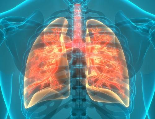 Tuberculose: saiba identificar os sintomas
