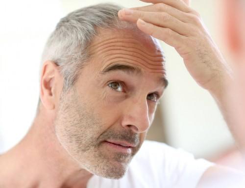 Queda de cabelo: veja quando procurar um médico